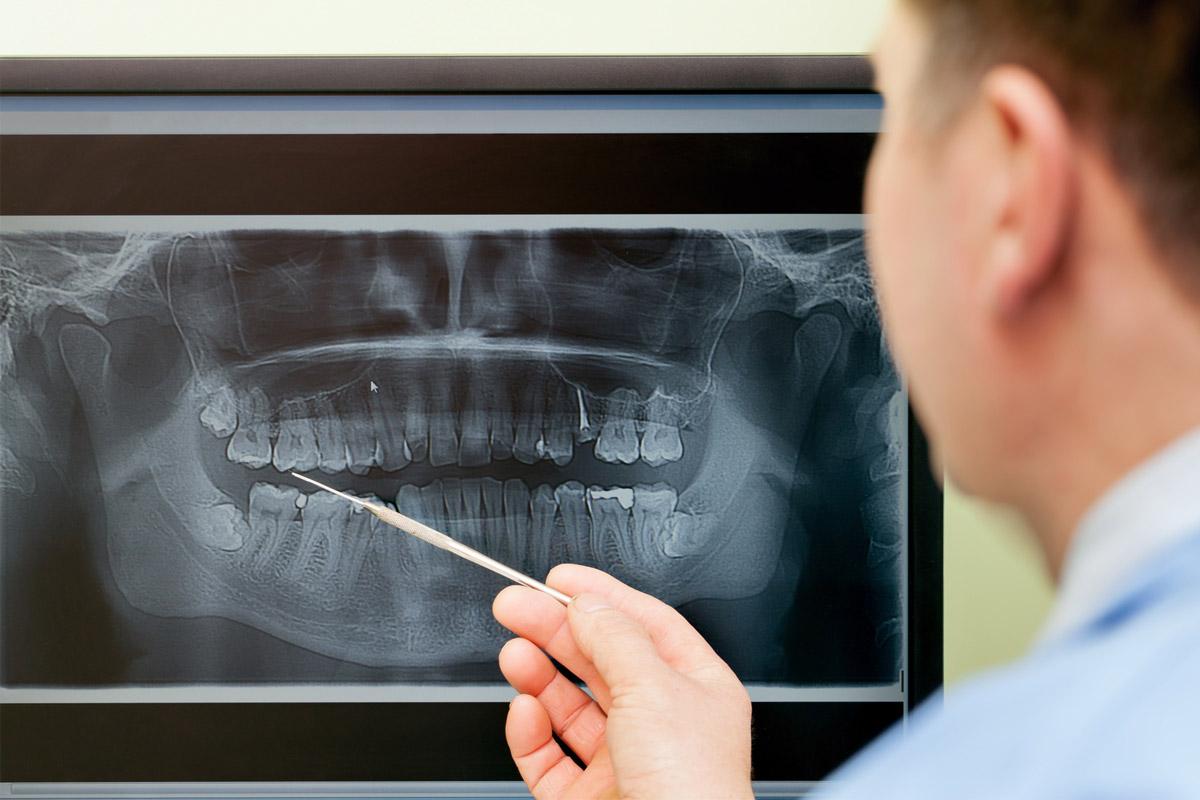 健康保険が適用される矯正歯科があることをご存知ですか?