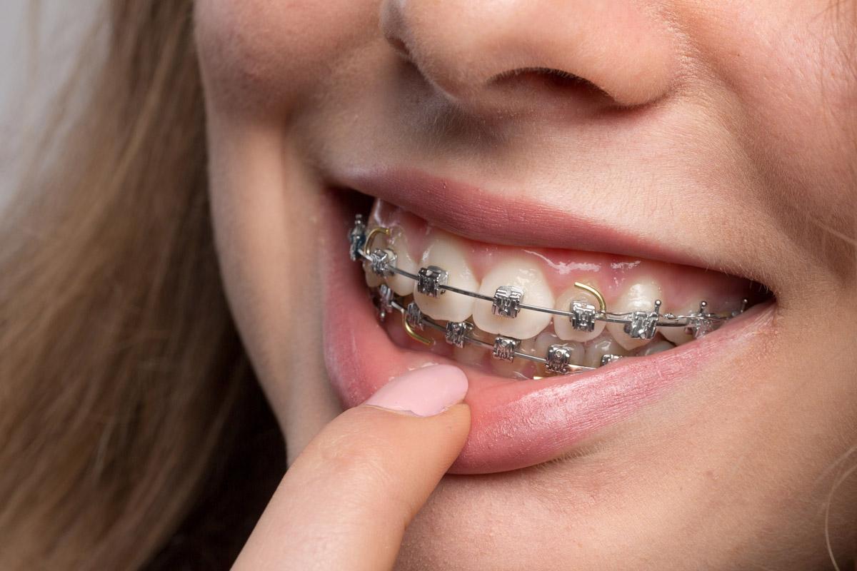 歯列矯正のブラケット装置 種類別メリットデメリット