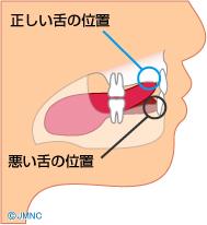 舌突出癖(舌を前に出す癖)