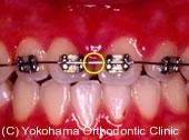 糸ようじ(フロス)や歯間ブラシの注意点