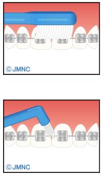 通常の歯ブラシや2列歯ブラシを使うコツ