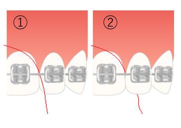 歯と歯の隙間にはフロスを駆使しよう!