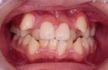 叢生[そうせい]乱ぐい歯、八重歯、でこぼこの歯並び