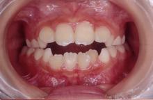 開咬 [かいこう]…上下の前歯に隙間ができて前歯で食べ物が噛みきれない