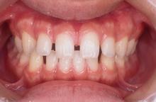 空隙歯列[くうげきしれつ]…すきっ歯、食べ物が歯の間に挟まりやすい