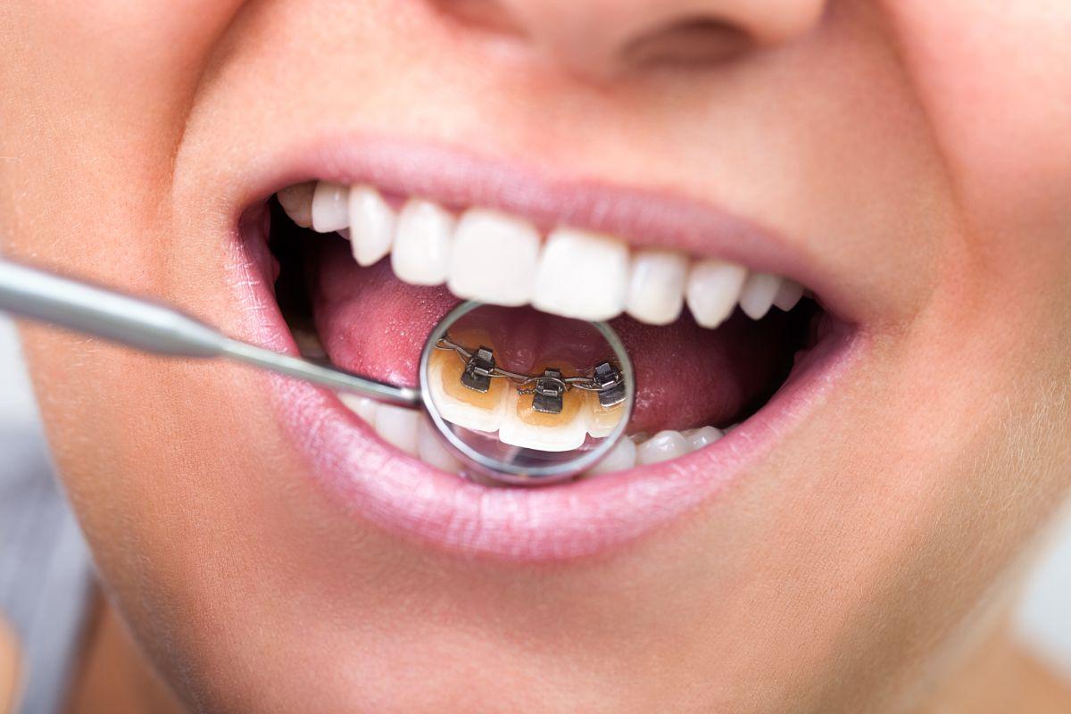 出っ歯を目立たずに矯正したい!-【裏側矯正】前歯の突出感とガタつきのある症例