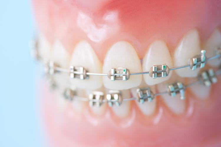 出っ歯の矯正にかかる治療期間は?どんな方法で矯正するの?