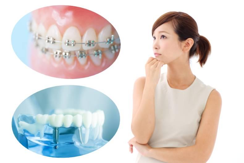 インプラントと歯列矯正、どっちを先に始めたらいいの?