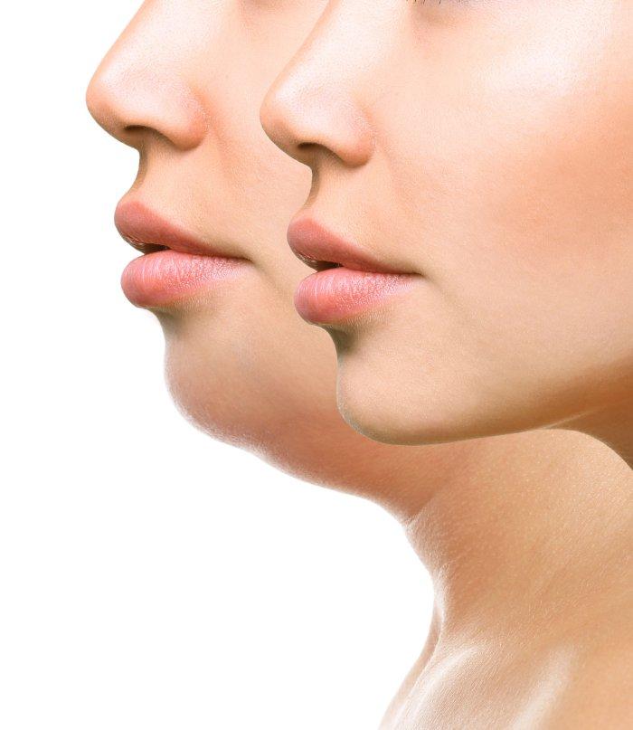 口ゴボの治療・改善 整形と外科矯正の違い