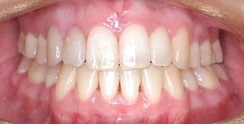 【切端咬合】前歯の負担が大きい噛み合わせ
