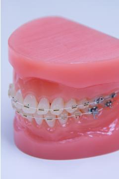 三宮 矯正歯科