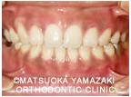 1. 歯列に隙間がある症例:治療後