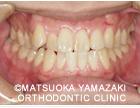 4. 受け口で八重歯の症例:治療前