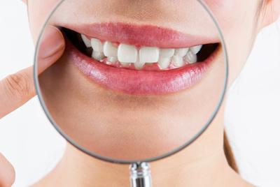 自分の歯並びのタイプが気になる!