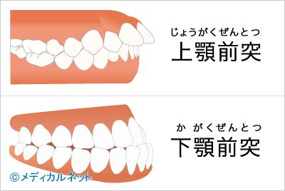 上顎前突(出っ歯)、下顎前突(受け口)