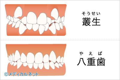 叢生[そうせい]、八重歯