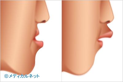 顎変形症[がくへんけいしょう]